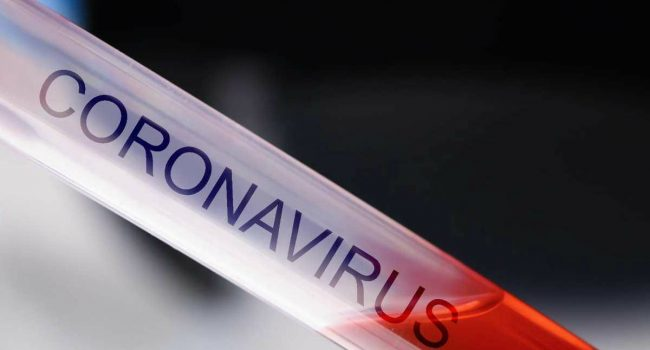 Coronavirus, 29 nuovi casi registrati in Sicilia